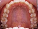 抜歯しない矯正治療