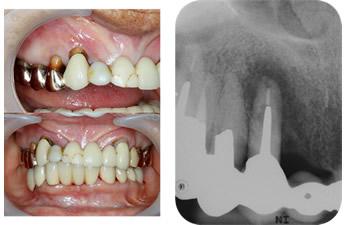 上の歯の歯肉が脹れて痛い