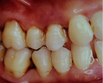 特殊な重度歯周疾患