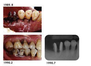 下顎臼歯部歯周処置