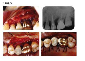 上顎臼歯部歯周処置